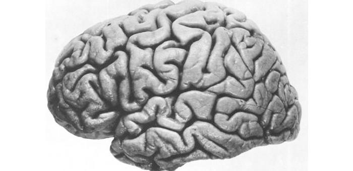 大脑网络分离度或与记忆相关