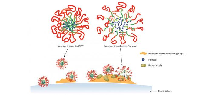 纳米粒子可帮助防治蛀牙