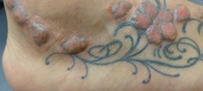 纹身会引发一个长期后果,不仅是同刻在你手臂上前女友的名字生活几图片