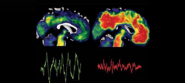 睡眠作用知多少?改善睡眠有助于预防阿尔茨海默病