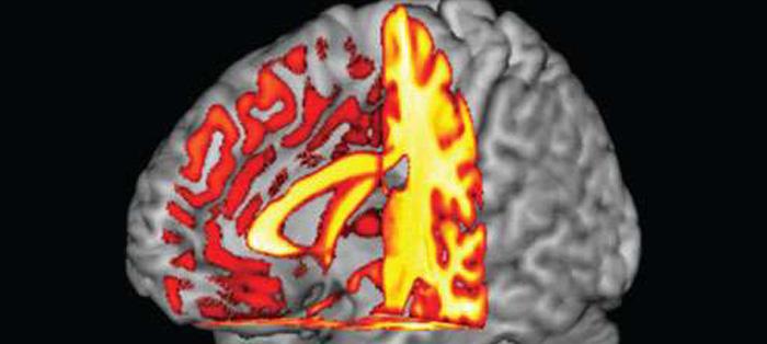 血型与阿尔茨海默病的联系
